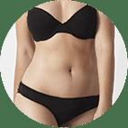 Erhöhter Körperfettanteil bei Frauen